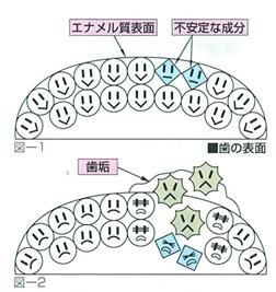 ムシ歯菌の及ぼす影響